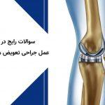 سوالات رایج در مورد عمل جراحی تعویض مفصل زانو