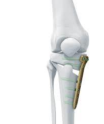 عمل جراحی اصلاح زانوی پرانتزی