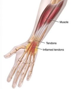التهاب تاندون های مچ دست
