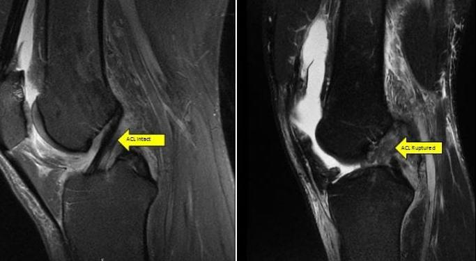درمان غیر جراحی آسیب رباط صلیبی ACL