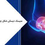 منیسک دیسکی شکل (discoid meniscus) چیست؟