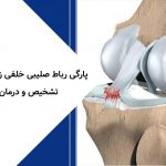 پارگی رباط صلیبی خلفی زانو PCL تشخیص و درمان